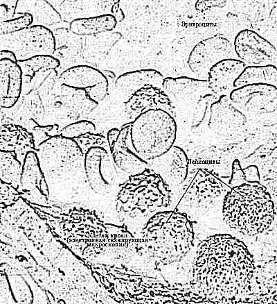 Состав крови ребенка