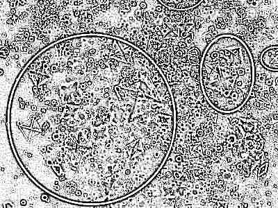 соли оксалаты в моче