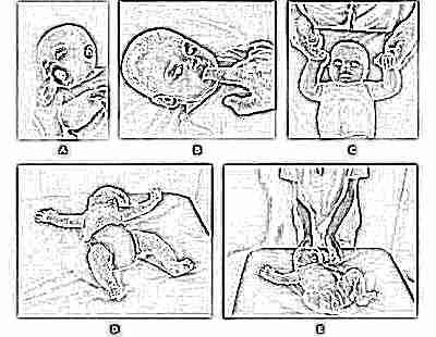 Рефлексы у новорожденного