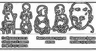 Недостаток витамина Д у детей грудничков