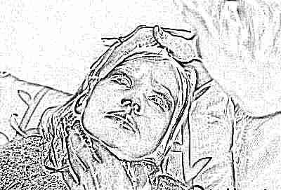 Ларингитный кашель у ребенка - симптомы