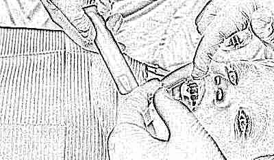 Что такое фторирование зубов