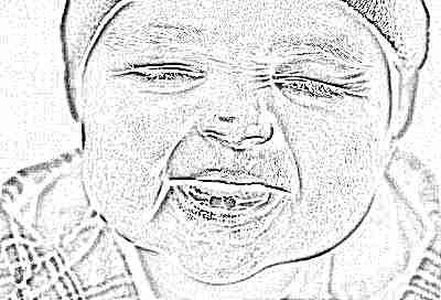 Опухла десна при прорезывании зубов у ребенка