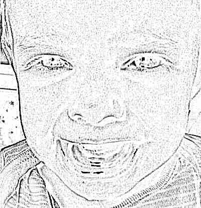 Посинение десен у малыша при прорезывании опасно ли это и что с этим делать
