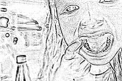 Как убрать кариес на молочных зубах