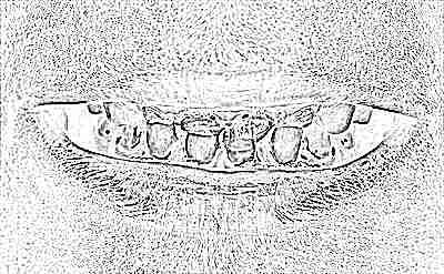 Кариес молочных зубов у детей раннего возраста – лечение детского кариеса молочных зубов