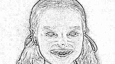 Ребенок верх зуб первый растет плохо