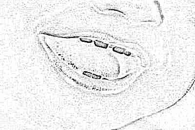 Молочные зубы – лечить или удалять
