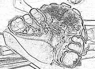 Как выглядят скобы для выравнивания зубов