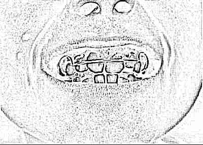 Сколько стоит пластина на зубы для выравнивания