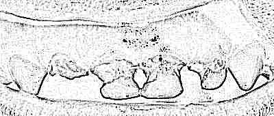 Чем покрывают зубы от кариеса детям — Зубы