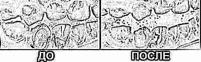 Когда у ребенка режутся зубки: симптомы, сроки и очередность
