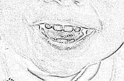 Почему желтеют зубы у подростков