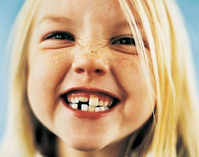 У ребенка воспалилась десна возле молочного зуба