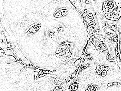 Как выглядит опухшие десна у младенца