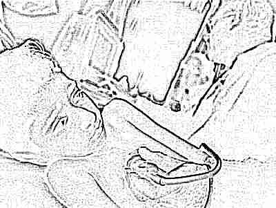Закрывается овальное окно. Когда должно закрыться овальное окно в сердце у ребенка? Признаки и проявления патологии.