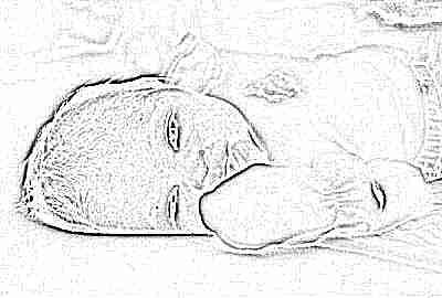 Шумы в сердце у новорожденного клапан