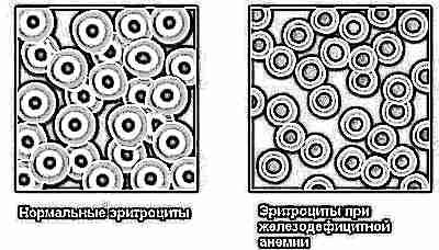 Почему может упасть гемоглобин у ребенка