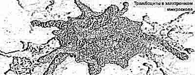 Причины снижения тромбоцитов в крови