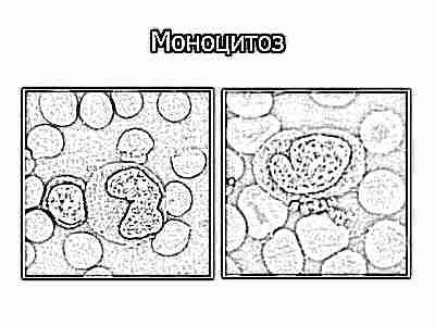 Повышен процент моноцитов