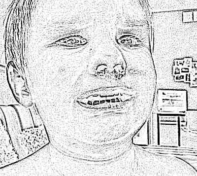 У маленького ребенка часто идет из носа кровь