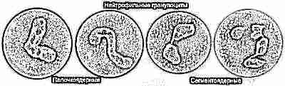 Ребенок анализ крови низкие нейтрофилы