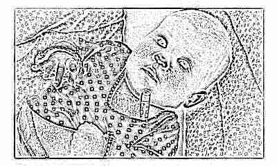 Скарлатина у детей симптомы фото сыпи 58