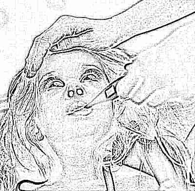 Скарлатина у детей симптомы фото сыпи 12