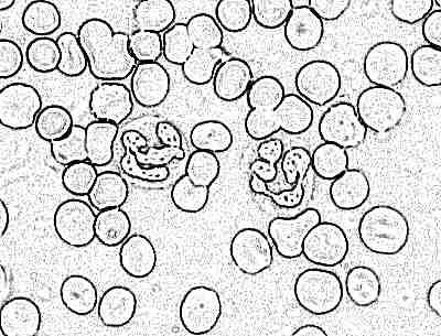 Детские норма анализа крови