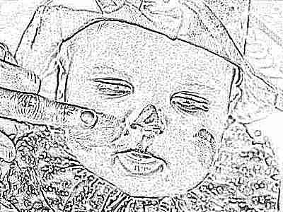 Акридерм от атопического дерматита для детей thumbnail