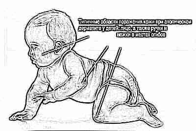 Аллергический дерматит у ребенка это