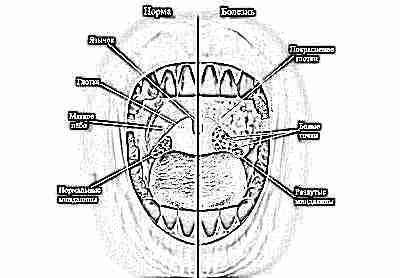 Начинающаяся ангина в горле фото