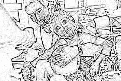 Детский церебральный спастический паралич (ДЦП)