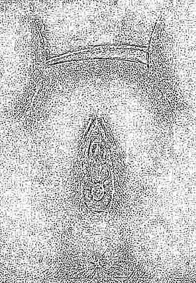 У маленькой девочки срослись малые губы фото