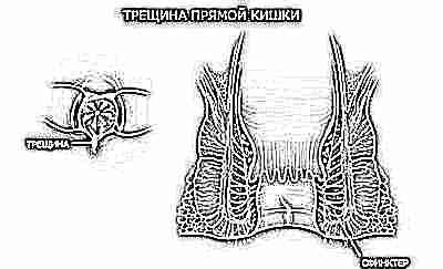 analniy-strapon-muzhchin