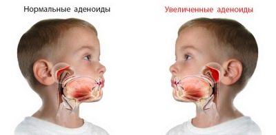 Почему новорожденный дышит ртом
