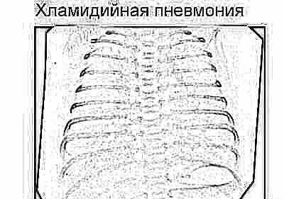 Закачать Массаж при пневмонии курсовая Работа реабилитация передней поверхности бронхиальная астма Скачать Позволяет Массаж при пневмонии курсовая образование слизи из легких кб Информация