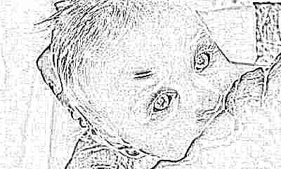 Чем можно помазать ушиб ребенку до года