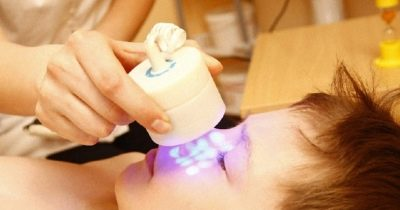 Сыпь вокруг рта у грудничка причины