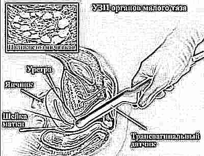 Узи патологии шейки матки