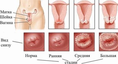 Почему может начаться кровотечение при беременности