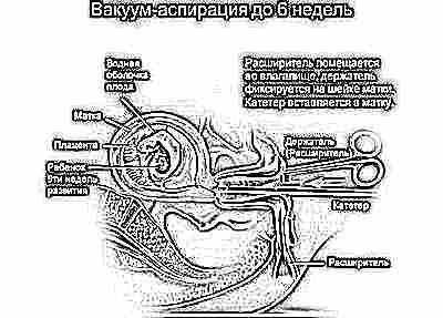 Соответствие ктр сроку беременности 10