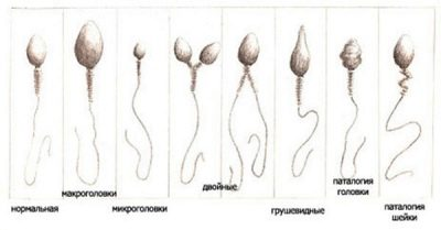 Спермограмма с оценкой морфологии 48