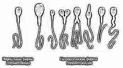 Спермограмма с оценкой морфологии 5