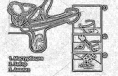Спермограмма с оценкой морфологии 8