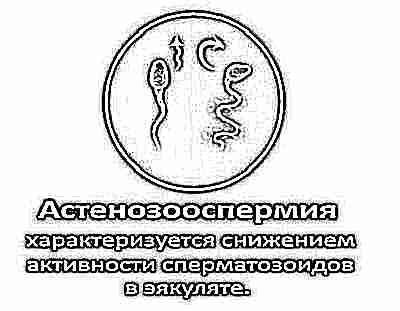Поведение сперматозоидов в жен