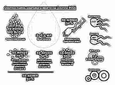 Как сделать хорошую способность к передвижению сперматозоидов
