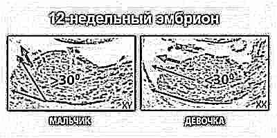 Беременности 12 недель сколько изменений происходит за 3 месяца