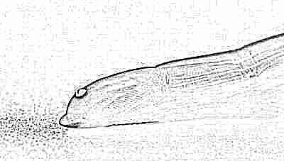Расшифровка общего анализа крови во втором триместре