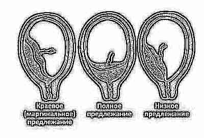 Переднее предлежание плаценты 39